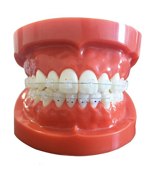 Study Model for Ortho